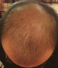 after scalp microchanneling 1