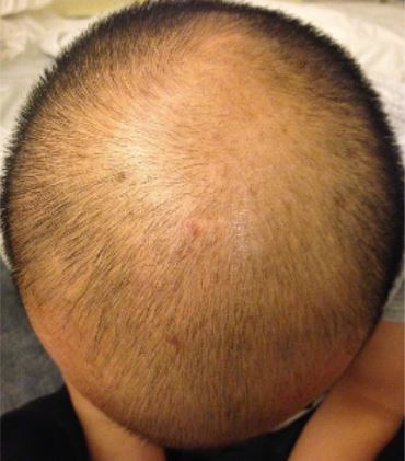 before scalp microneedling